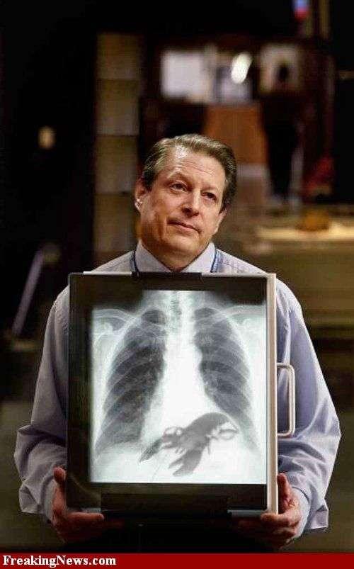 Знаменитости под рентгеновскими лучами (29 фото)